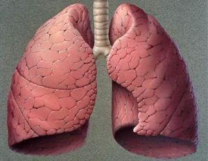 mtc_pulmón
